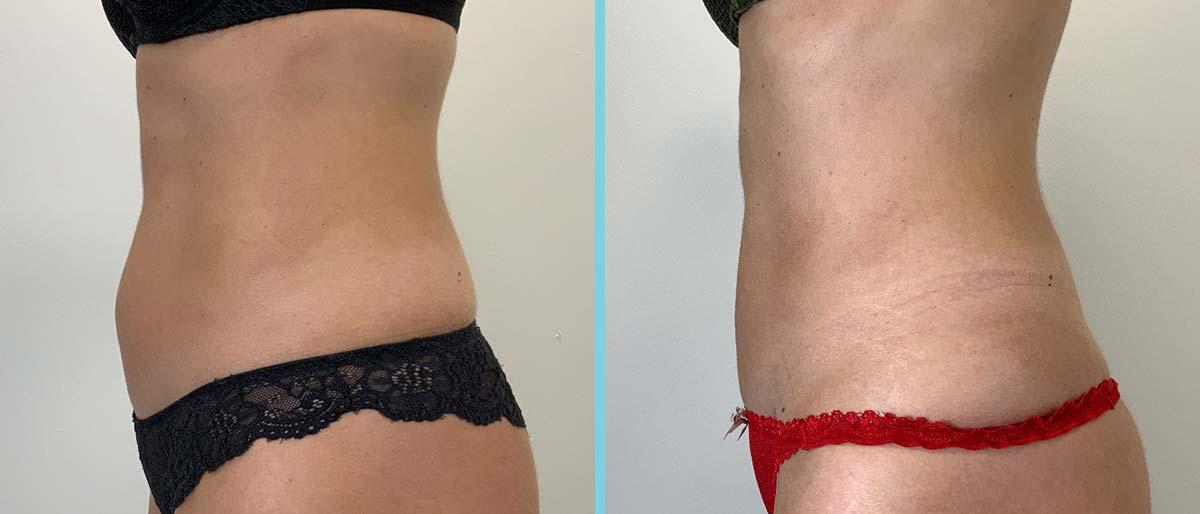 next-fatfreeze-before-after-resultaat-12-vrouw-onderbuik