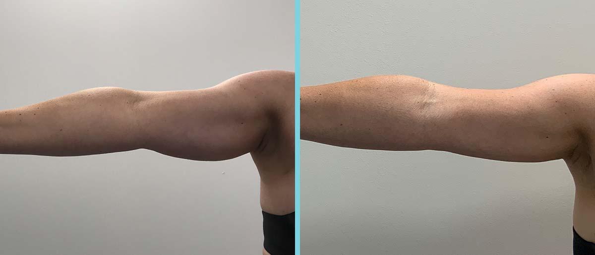 Vet verwijderen van onderarmen (bekende kipfilets)
