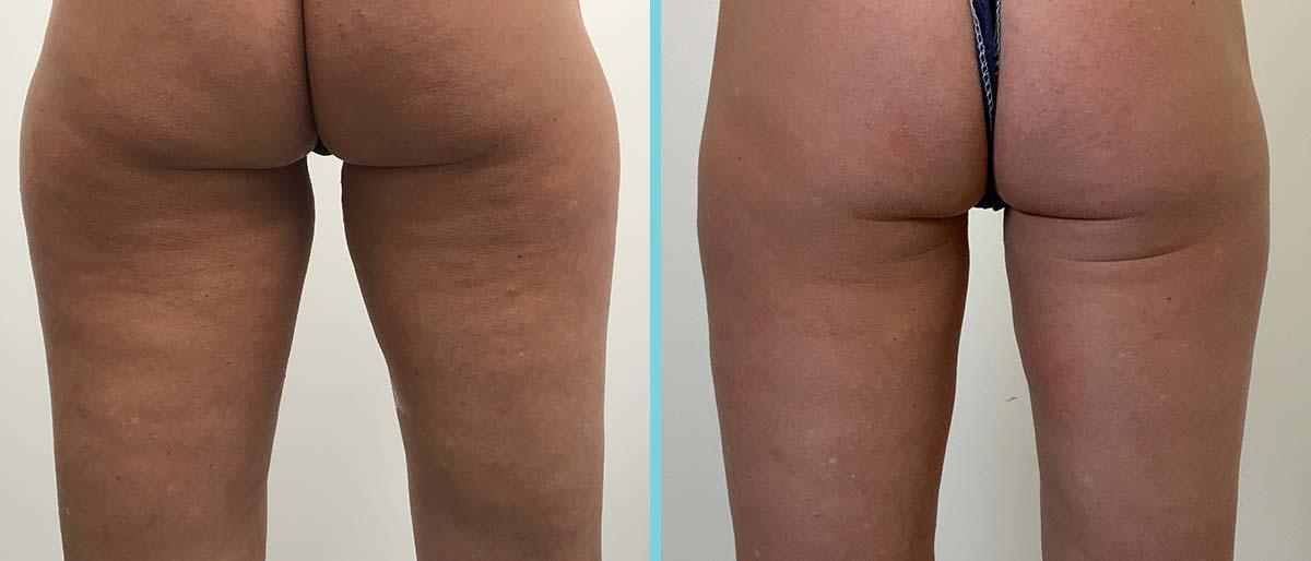 Cryolipolyse behandeling benen. Resultaat na 2 behandelingen.
