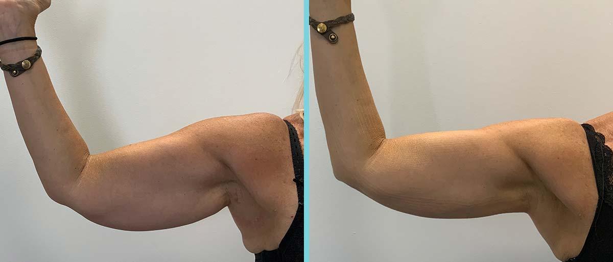 next-fatfreeze-cryolipolyse-resultaat-armvet-verwijderen