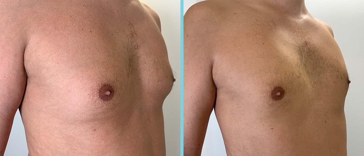 next-fatfreeze-cryolipolyse-resultaat-mannenborsten